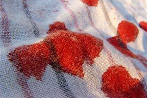 Как отмыть пятна крови
